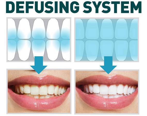 Labstory Whiteplan Dwp 280 Tooth Whitening System